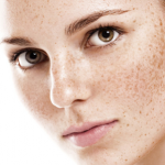 woman with pigmentation